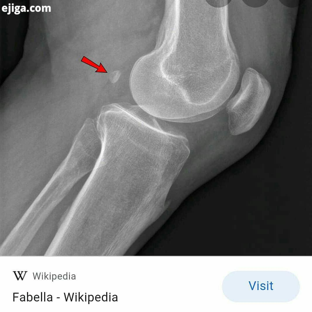 Do you have fabella? Bone thought lost to evolution is showing up in humans with arthritis Ashley Ma