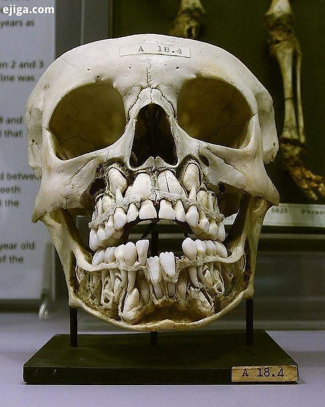 HUMAN ANATOMY SERIES جمجمه ای که ملاحظه می کنید، متعلق به بچه ای است در قرن 19 میلادی دندانهای شیری