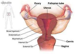 بیماری التهابی لگن یا اختلال التهابی لگن PID عفونت قسمت فوقانی سیستم تولید مثل زنان یعنی رحم، لوله